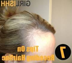 haircuts for receding hairlines for women the most amazing haircuts for women with receding hairlines for your