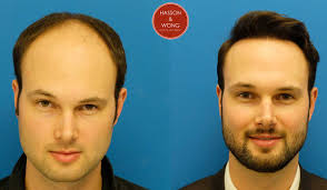 hair transplant calculator hair transplant cost hair transplant surgery cost financing