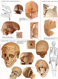 Floor Of The Cranium Inter Group Violence Among Early Holocene Hunter Gatherers Of West