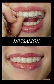 Comfort Dental Orthodontics Bakersfield Ca 92 Best Orthodontics Belfast Images On Pinterest Belfast