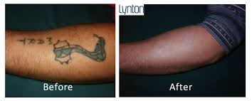 laser tattoo removal blackpool the fylde clinic