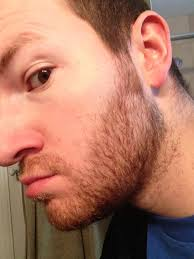 Hair Loss From Chemo A Blog About Beards U2013 Rounding 30
