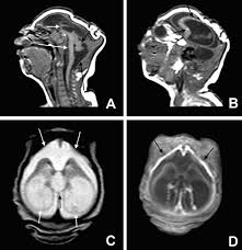 clinical features and neuroimaging ct and mri findings in