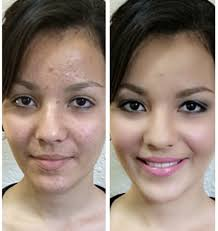 airbrush makeup over acne