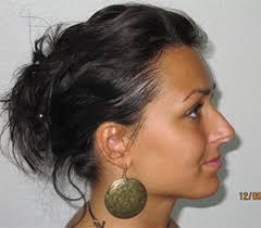 lady neck hair doctor patrick frechet official website hair restoration surgery