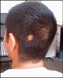 best hairstyle for alopecia best alopecia hair styles kheop