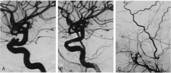 treatment of internal carotid artery aneurysms with a covered