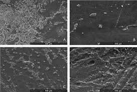mycose du si e b effects of trimethylsilane plasma coating on the hydrophobicity of