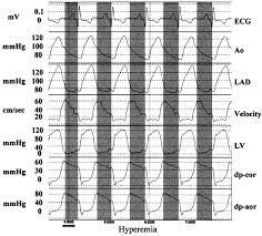 diastolic fractional flow reserve to assess the functional