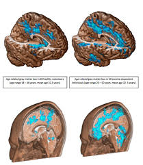 The Anatomy Of The Human Brain Cocaine Eats Up Brain Twice As Fast As Normal Aging