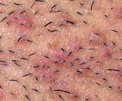 pubic hairs pics how to get rid of ingrown pubic hair pictures causes and remedies