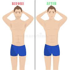 male pubic hair removal photos man depilation laser hair removal male epilation stock