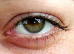 what causes eyes to be sensitive to light why are my eyes so sensitive to light causes and top 7 natural