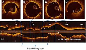 intracoronary optical coherence tomography a comprehensive review