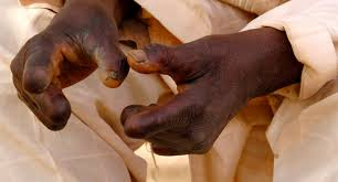 what is leprosy what is leprosy about us leprosy the