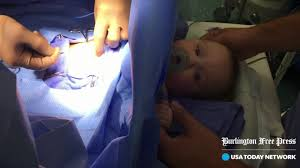 burlington babies concern grows around anesthesia effects on babies
