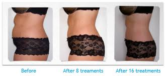 lipo light laser treatment reviews laser lipo laser liposuction belly fat shaping you