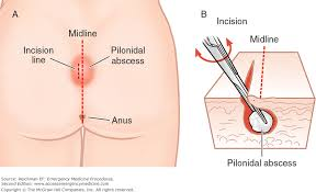 pilonidal cyst location chapter 109 pilonidal abscess or cyst incision and drainage