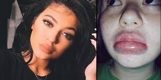 Challenge Que Es Conoce Los Horribles Resultados Kyliejennerchallenge