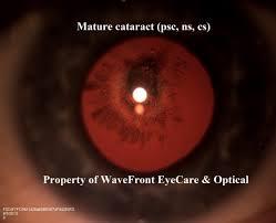 Astigmatism Night Blindness Eye Dictionary Wavefront Eyecare Portland Texas
