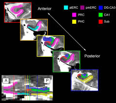 anterolateral entorhinal cortex volume predicted by altered intra
