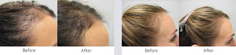 viviscal before and after hair length afro viviscal professional hair ebay