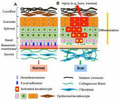a basement membrane occurs between basement ideas