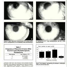 phototherapeutic keratectomy in recurrent corneal epithelial erosion