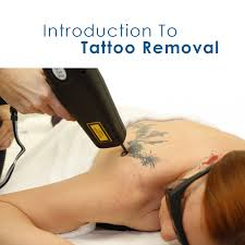 introduction to tattoo removal u2022 aesthetic laser training