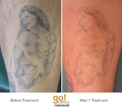tattoo removal page 3 sherdog forums ufc mma u0026 boxing