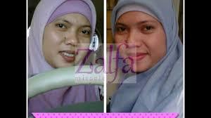 Serum Zalfa Miracle zalfa miracle antiaging lightening serum