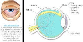 glasses for eyes sensitive to light medical science