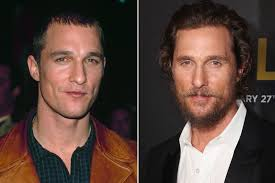 sting hair transplant matthew mcconaughey was balding in the 90s people com