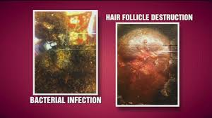 hairr styles for woman with alopica certain hairstyles blamed for hair loss in women abc7chicago com