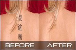 professional laser tattoo removal in wolverhampton