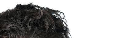 amazon black friday 2012 deutschland amazon com men u0027s rogaine hair loss u0026 hair thinning treatment