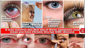 eyes sensitive to light treatment dry eye syndrome ह द म hindi education