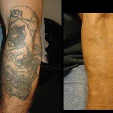 project erase tattoo removal tattoo removal 1719 w burnside st