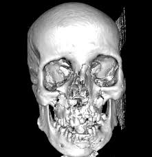 concepts in management of advanced craniomaxillofacial injuries