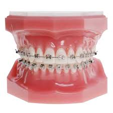 nickel free braces legacy m nickel free brackets