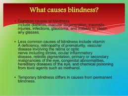 Diseases Of The Eye That Cause Blindness Sensory Disorder