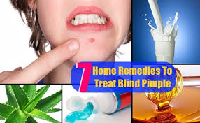 Blind Pimples On Chin How To Cover A Blind Pimple With Makeup Makeup Daily