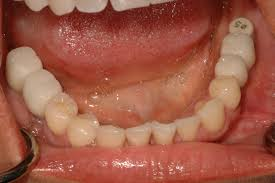 how wisdom teeth are extracted tooth extractions