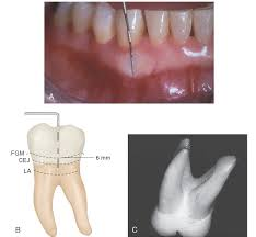 Wheeler S Dental Anatomy Physiology And Occlusion Development And Eruption Of The Teeth Dental Anatomy Physiology
