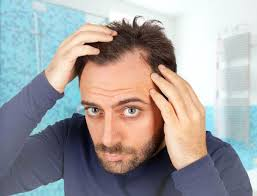 invisible part for thin hair best hair loss treatment for men a no nonsense guide