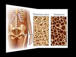 Normal Bone Anatomy And Physiology Bone Remodeling Bob And Claude Youtube