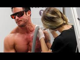 tattoo removal do you want it youtube