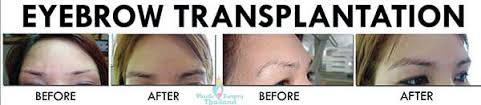 hair transplant costs in the philippines hair transplants in bangkok hair restoration in thailand cost reviews