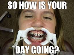 Braces Memes - 101 best braces problems images on pinterest braces problems