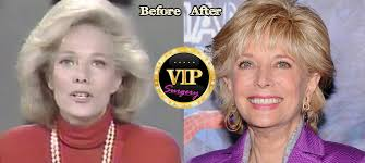 leslie stahl earrings lesley stahl plastic surgery before and after photos